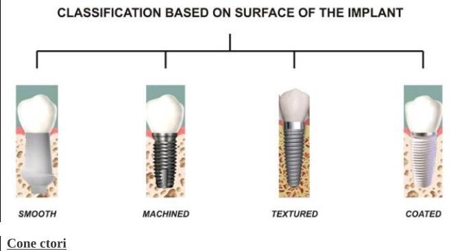 implant-dentar-iasi
