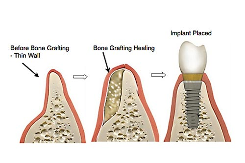 bone-graft