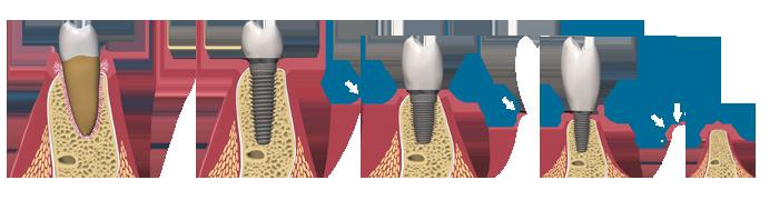 dental-implant-bone-loss3